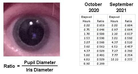 Eye Dilation 1